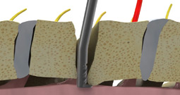 dreal-cervical-acdf
